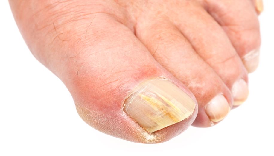 What Causes Nail Fungus | Toenail Fungus Treatments